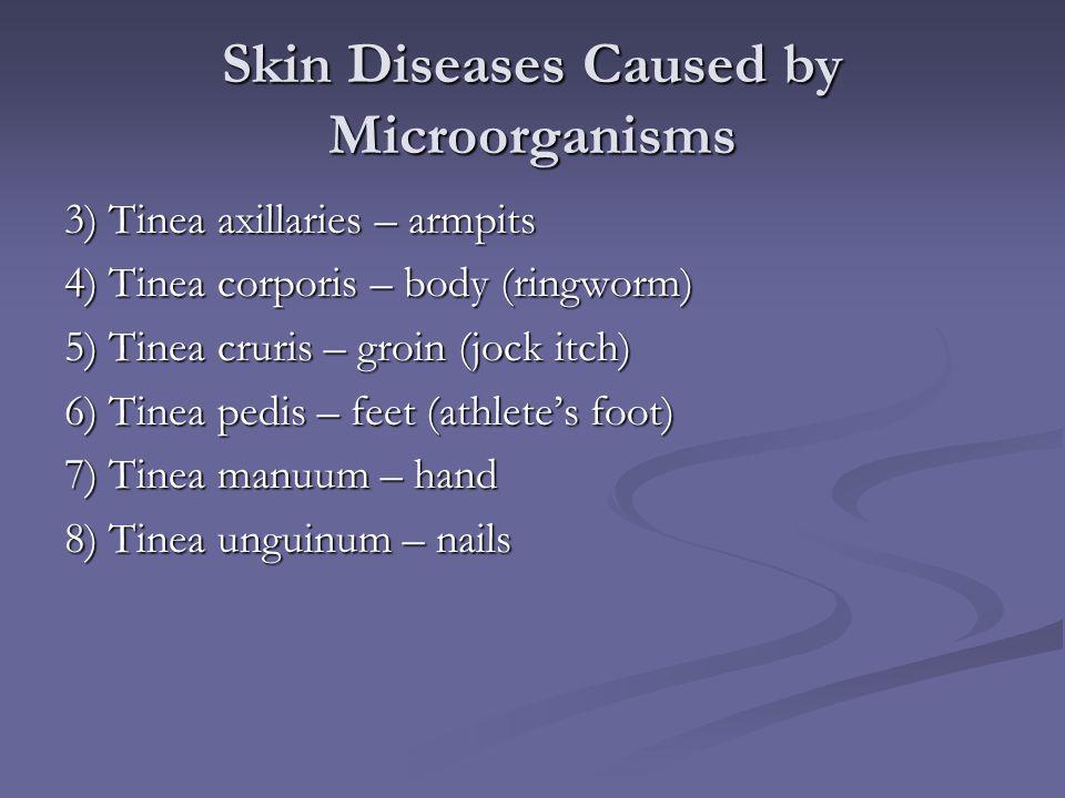 Skin Diseases Caused by Microorganisms 3) Tinea axillaries – armpits 4) Tinea corporis – body (ringworm) 5) Tinea cruris – groin (jock itch) 6) Tinea