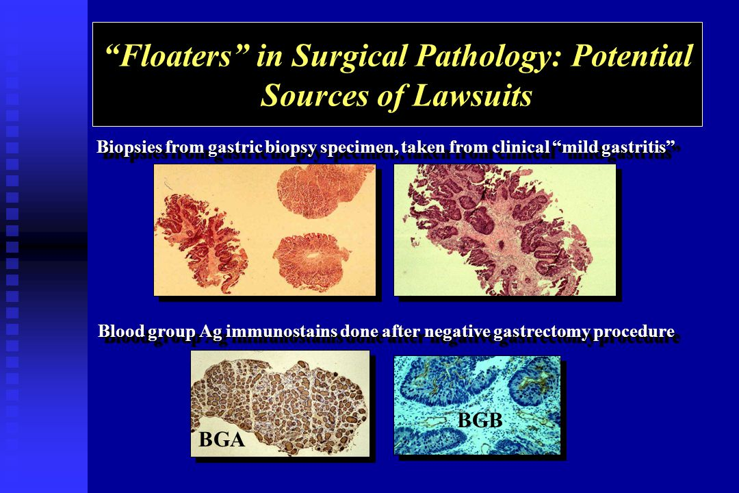 Floaters in Surgical Pathology: Potential Sources of Lawsuits Biopsies from gastric biopsy specimen, taken from clinical mild gastritis Blood group Ag