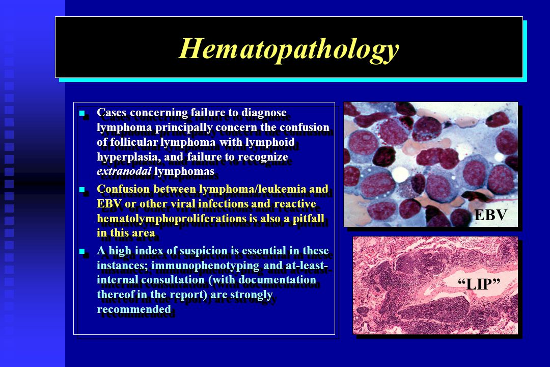 Hematopathology Cases concerning failure to diagnose lymphoma principally concern the confusion of follicular lymphoma with lymphoid hyperplasia, and failure to recognize extranodal lymphomas Cases concerning failure to diagnose lymphoma principally concern the confusion of follicular lymphoma with lymphoid hyperplasia, and failure to recognize extranodal lymphomas Confusion between lymphoma/leukemia and EBV or other viral infections and reactive hematolymphoproliferations is also a pitfall in this area Confusion between lymphoma/leukemia and EBV or other viral infections and reactive hematolymphoproliferations is also a pitfall in this area A high index of suspicion is essential in these instances; immunophenotyping and at-least- internal consultation (with documentation thereof in the report) are strongly recommended A high index of suspicion is essential in these instances; immunophenotyping and at-least- internal consultation (with documentation thereof in the report) are strongly recommended Cases concerning failure to diagnose lymphoma principally concern the confusion of follicular lymphoma with lymphoid hyperplasia, and failure to recognize extranodal lymphomas Cases concerning failure to diagnose lymphoma principally concern the confusion of follicular lymphoma with lymphoid hyperplasia, and failure to recognize extranodal lymphomas Confusion between lymphoma/leukemia and EBV or other viral infections and reactive hematolymphoproliferations is also a pitfall in this area Confusion between lymphoma/leukemia and EBV or other viral infections and reactive hematolymphoproliferations is also a pitfall in this area A high index of suspicion is essential in these instances; immunophenotyping and at-least- internal consultation (with documentation thereof in the report) are strongly recommended A high index of suspicion is essential in these instances; immunophenotyping and at-least- internal consultation (with documentation thereof in the report) are strongly recommended EBV LIP