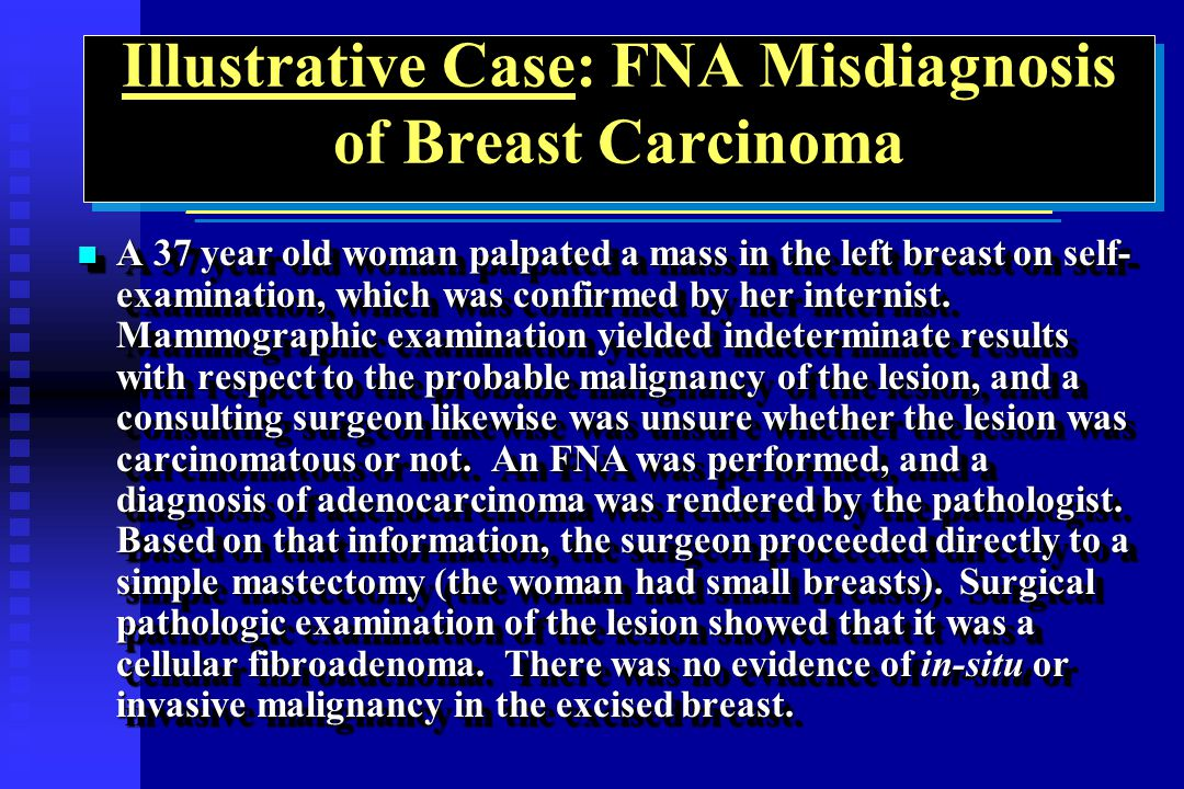 Illustrative Case: FNA Misdiagnosis of Breast Carcinoma ___________________________________________________________ A 37 year old woman palpated a mas