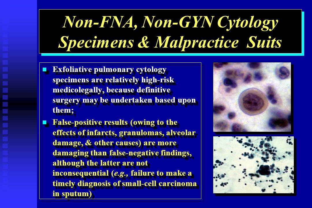 Non-FNA, Non-GYN Cytology Specimens & Malpractice Suits Exfoliative pulmonary cytology specimens are relatively high-risk medicolegally, because definitive surgery may be undertaken based upon them; Exfoliative pulmonary cytology specimens are relatively high-risk medicolegally, because definitive surgery may be undertaken based upon them; False-positive results (owing to the effects of infarcts, granulomas, alveolar damage, & other causes) are more damaging than false-negative findings, although the latter are not inconsequential (e.g., failure to make a timely diagnosis of small-cell carcinoma in sputum) False-positive results (owing to the effects of infarcts, granulomas, alveolar damage, & other causes) are more damaging than false-negative findings, although the latter are not inconsequential (e.g., failure to make a timely diagnosis of small-cell carcinoma in sputum) Exfoliative pulmonary cytology specimens are relatively high-risk medicolegally, because definitive surgery may be undertaken based upon them; Exfoliative pulmonary cytology specimens are relatively high-risk medicolegally, because definitive surgery may be undertaken based upon them; False-positive results (owing to the effects of infarcts, granulomas, alveolar damage, & other causes) are more damaging than false-negative findings, although the latter are not inconsequential (e.g., failure to make a timely diagnosis of small-cell carcinoma in sputum) False-positive results (owing to the effects of infarcts, granulomas, alveolar damage, & other causes) are more damaging than false-negative findings, although the latter are not inconsequential (e.g., failure to make a timely diagnosis of small-cell carcinoma in sputum)