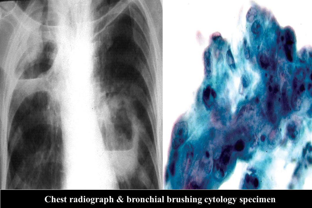 Chest radiograph & bronchial brushing cytology specimen