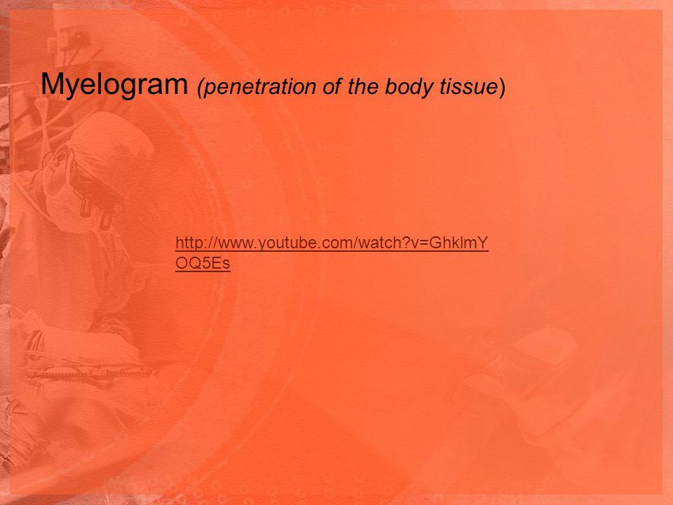 http://www.youtube.com/watch?v=Jz31Li9 MM_E