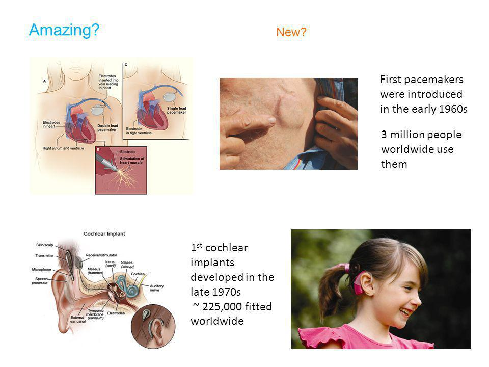 Amazing? New? First pacemakers were introduced in the early 1960s 3 million people worldwide use them 1 st cochlear implants developed in the late 197