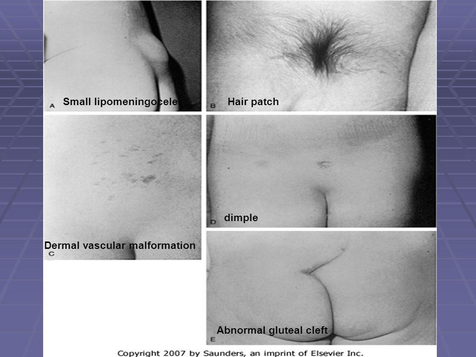 Small lipomeningoceleHair patch Dermal vascular malformation dimple Abnormal gluteal cleft