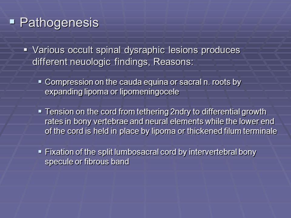 Pathogenesis Pathogenesis Various occult spinal dysraphic lesions produces different neuologic findings, Reasons: Various occult spinal dysraphic lesi