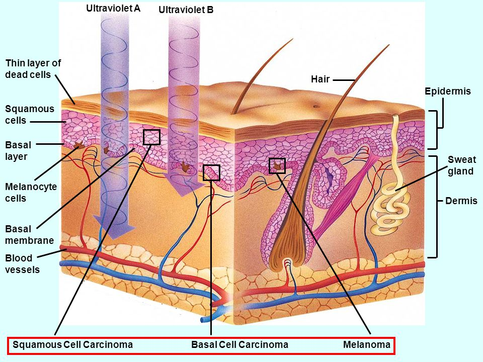 Ultraviolet A Ultraviolet B Thin layer of dead cells Squamous cells Basal layer Melanocyte cells Basal membrane Blood vessels Hair Epidermis Sweat gland Dermis Squamous Cell CarcinomaBasal Cell CarcinomaMelanoma Fig.
