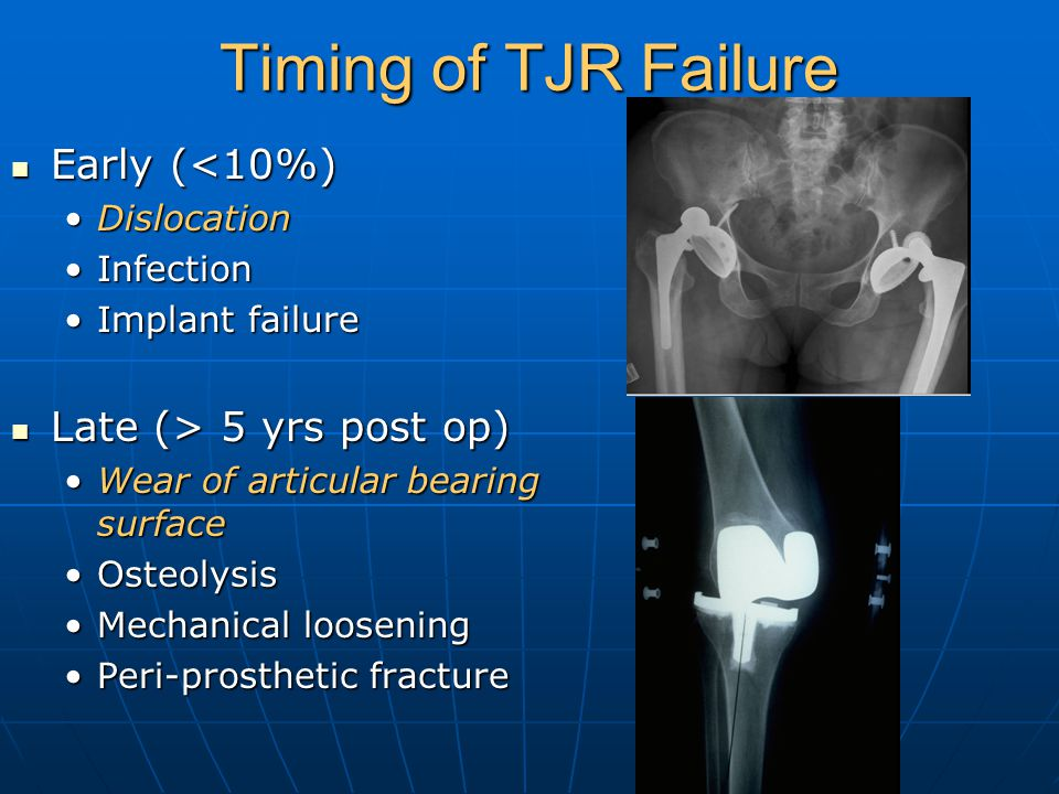 Timing of TJR Failure Early (<10%) Early (<10%) DislocationDislocation InfectionInfection Implant failureImplant failure Late (> 5 yrs post op) Late (