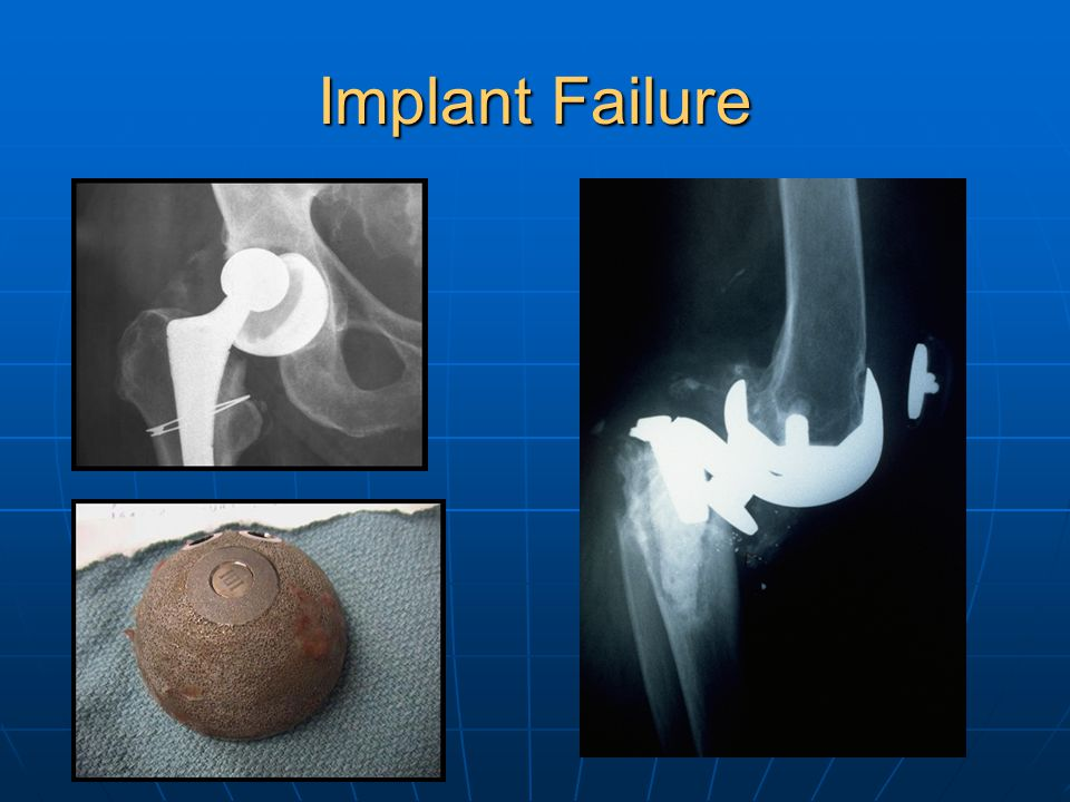 Implant Failure