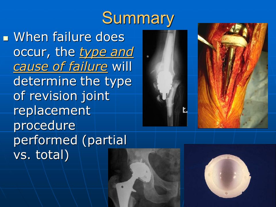 Summary When failure does occur, the type and cause of failure will determine the type of revision joint replacement procedure performed (partial vs.