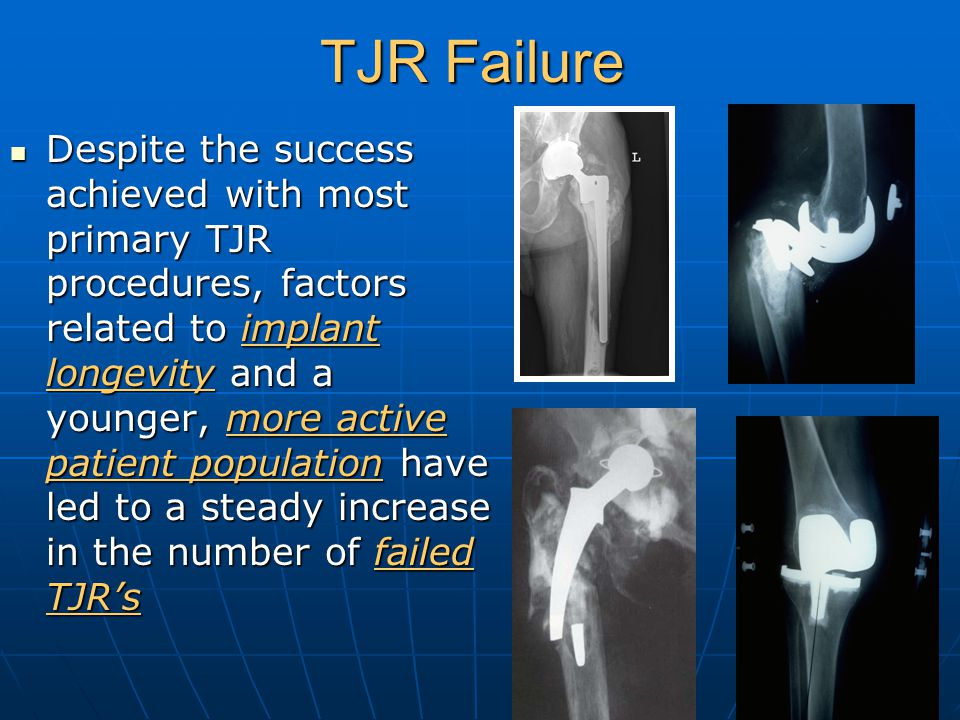 Causes of TJR Failure Wear of articular bearing surface Wear of articular bearing surface Aseptic/mechanical loosening Aseptic/mechanical loosening Osteolysis Osteolysis Infection Infection Instability Instability Peri-prosthetic fracture Peri-prosthetic fracture Implant Failure Implant Failure