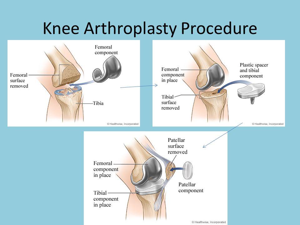 Knee Arthroplasty Procedure