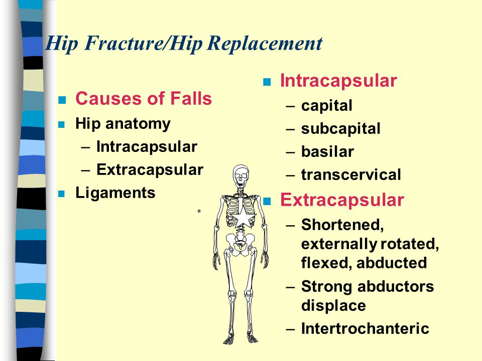 Hip Fracture/Hip Replacement n Causes of Falls n Hip anatomy –Intracapsular –Extracapsular n Ligaments n Intracapsular –capital –subcapital –basilar –transcervical n Extracapsular –Shortened, externally rotated, flexed, abducted –Strong abductors displace –Intertrochanteric