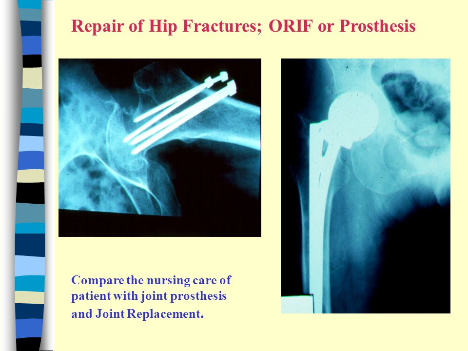 Repair of Hip Fractures; ORIF or Prosthesis Compare the nursing care of patient with joint prosthesis and Joint Replacement.