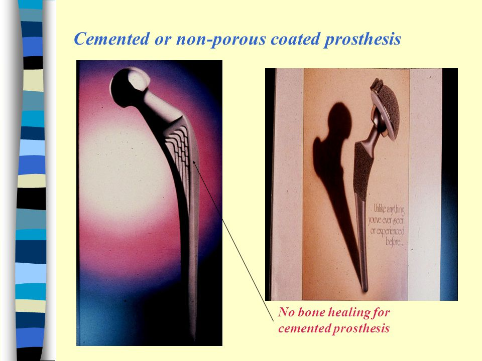 Cemented or non-porous coated prosthesis No bone healing for cemented prosthesis