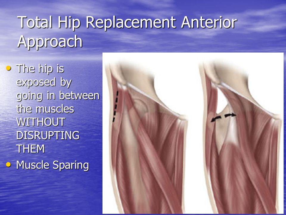 Total Hip Replacement Anterior Approach The hip is exposed by going in between the muscles WITHOUT DISRUPTING THEM The hip is exposed by going in betw