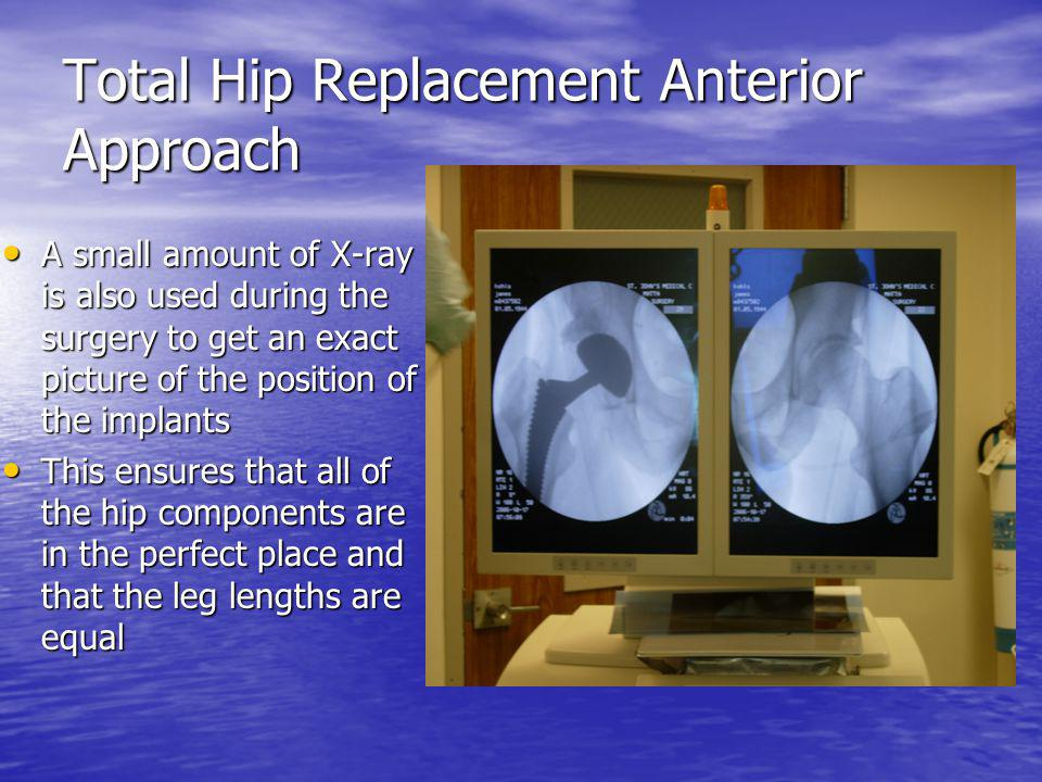 Total Hip Replacement Anterior Approach A small amount of X-ray is also used during the surgery to get an exact picture of the position of the implant
