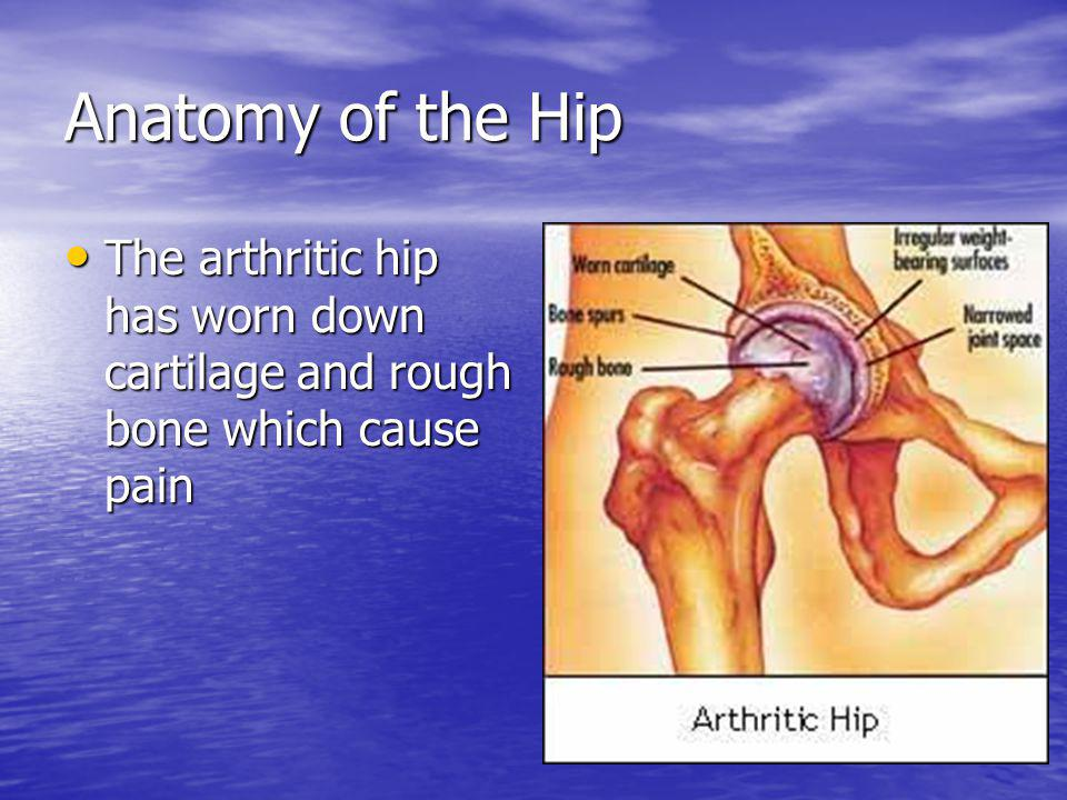 Anatomy of the Hip The arthritic hip has worn down cartilage and rough bone which cause pain The arthritic hip has worn down cartilage and rough bone