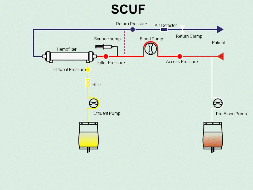 SCUF Syringe pump Return Pressure Air Detector Blood Pump Access Pressure Filter Pressure BLD Hemofilter Patient Effluent Pump Return Clamp Pre Blood