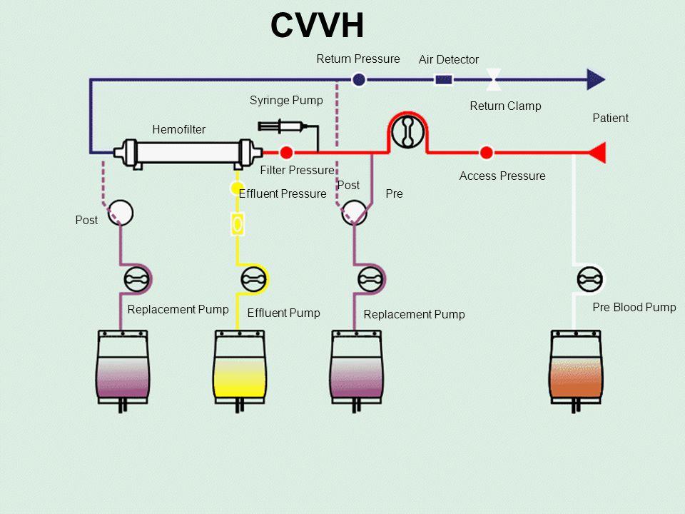 CVVH Return Pressure Air Detector Return Clamp Patient Access Pressure Effluent Pump Syringe Pump Filter Pressure Hemofilter Pre Post Replacement Pump