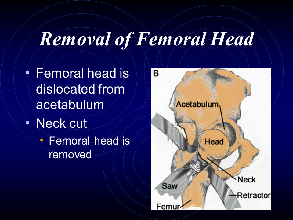 Removal of Femoral Head Femoral head is dislocated from acetabulum Neck cut Femoral head is removed