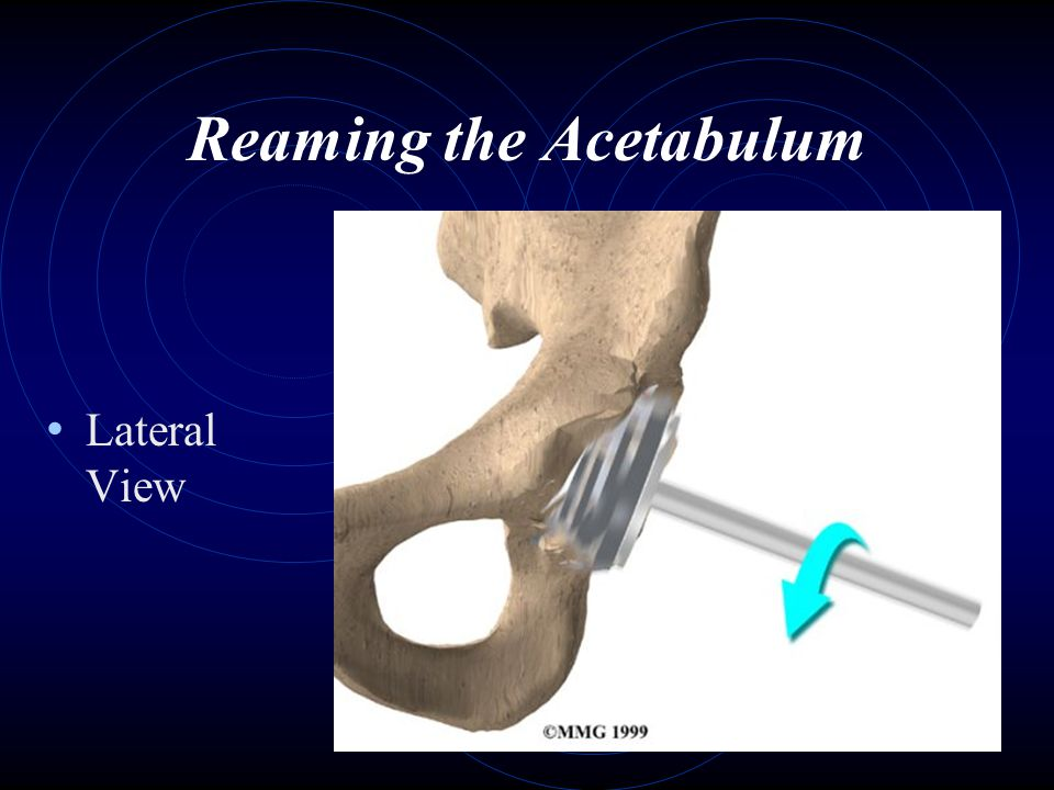 Reaming the Acetabulum Lateral View