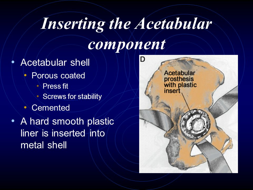 Inserting the Acetabular component Acetabular shell Porous coated Press fit Screws for stability Cemented A hard smooth plastic liner is inserted into