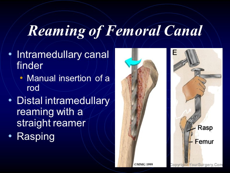 Reaming of Femoral Canal Intramedullary canal finder Manual insertion of a rod Distal intramedullary reaming with a straight reamer Rasping