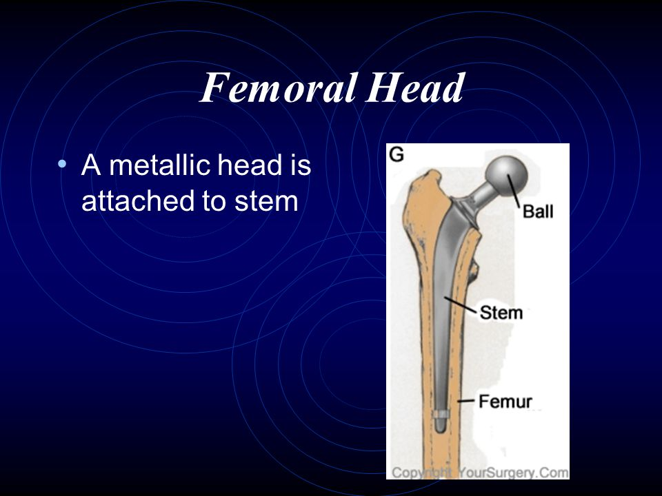 Femoral Head A metallic head is attached to stem