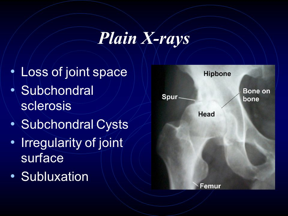 Plain X-rays Loss of joint space Subchondral sclerosis Subchondral Cysts Irregularity of joint surface Subluxation