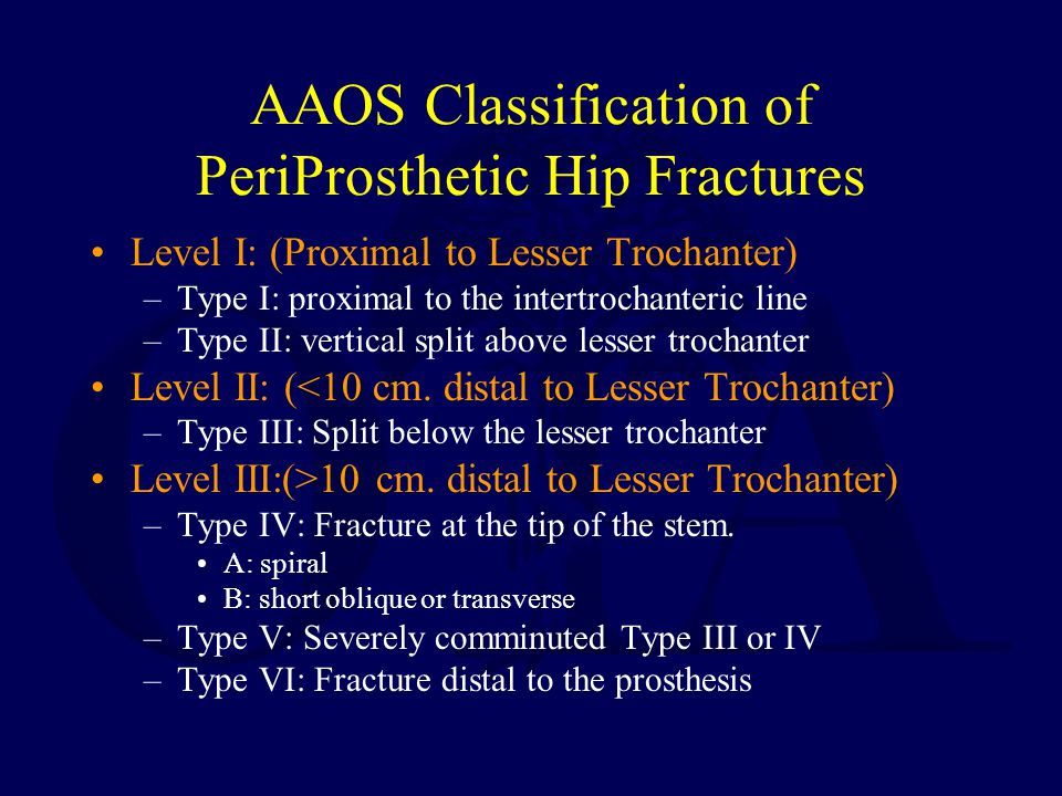 AAOS Classification of PeriProsthetic Hip Fractures Level I: (Proximal to Lesser Trochanter) –Type I: proximal to the intertrochanteric line –Type II: vertical split above lesser trochanter Level II: (<10 cm.