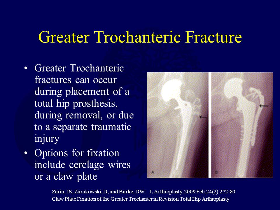 Greater Trochanteric Fracture Greater Trochanteric fractures can occur during placement of a total hip prosthesis, during removal, or due to a separate traumatic injury Options for fixation include cerclage wires or a claw plate Zarin, JS, Zurakowski, D, and Burke, DW: J.