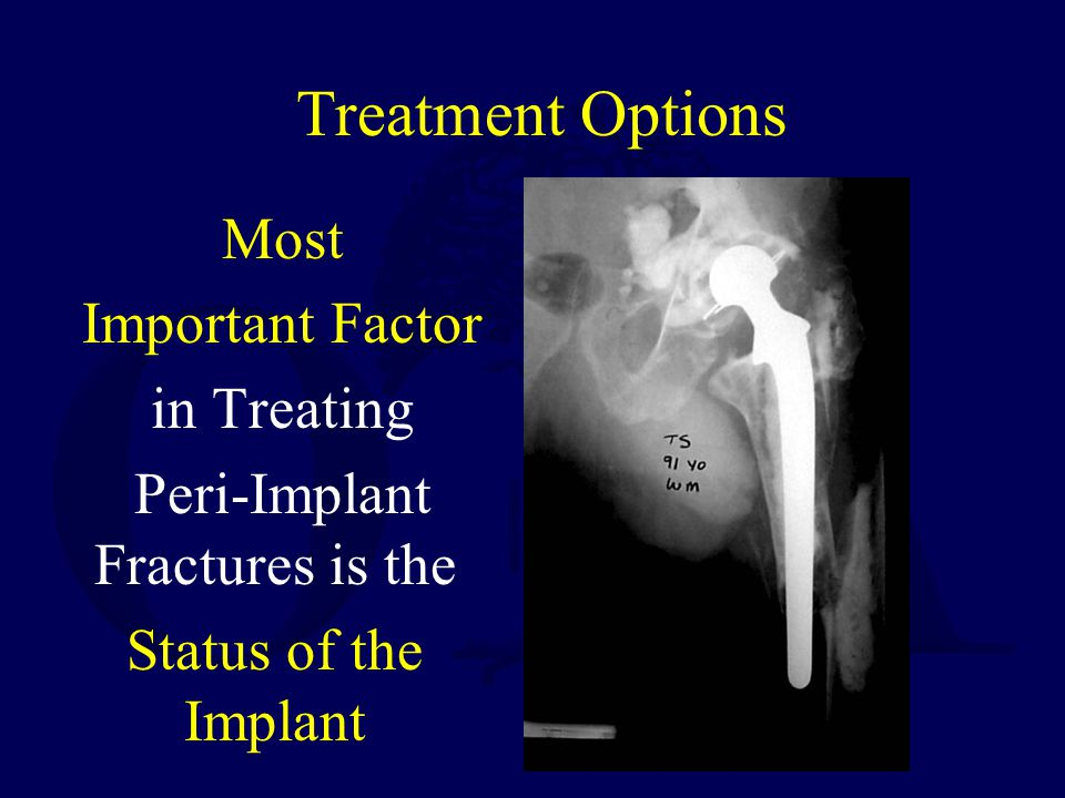 Treatment Options Most Important Factor in Treating Peri-Implant Fractures is the Status of the Implant
