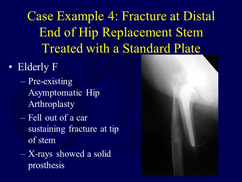 Case Example 4: Fracture at Distal End of Hip Replacement Stem Treated with a Standard Plate Elderly F –Pre-existing Asymptomatic Hip Arthroplasty –Fell out of a car sustaining fracture at tip of stem –X-rays showed a solid prosthesis