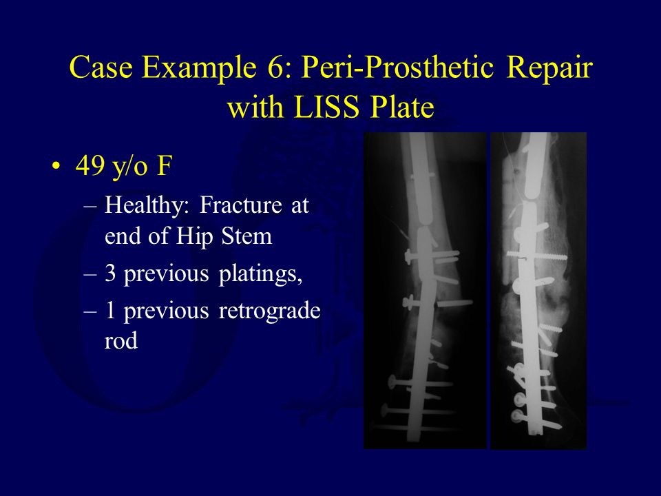 Case Example 6: Peri-Prosthetic Repair with LISS Plate 49 y/o F –Healthy: Fracture at end of Hip Stem –3 previous platings, –1 previous retrograde rod