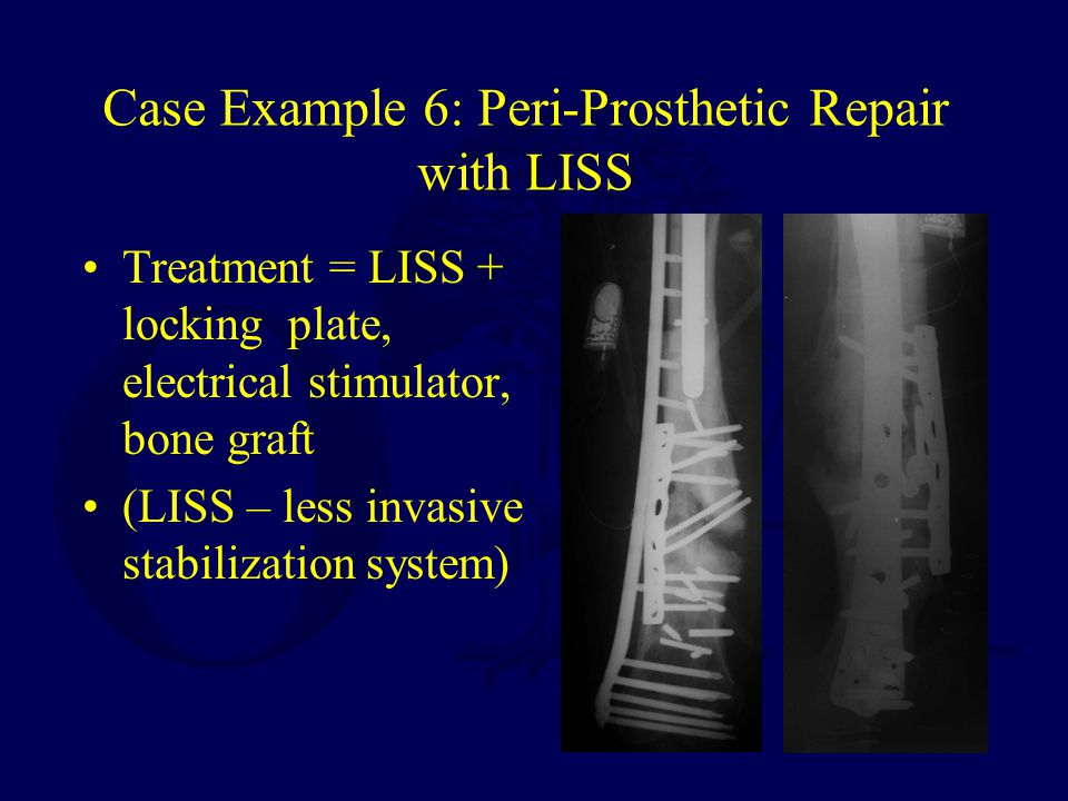 Case Example 6: Peri-Prosthetic Repair with LISS Treatment = LISS + locking plate, electrical stimulator, bone graft (LISS – less invasive stabilization system)