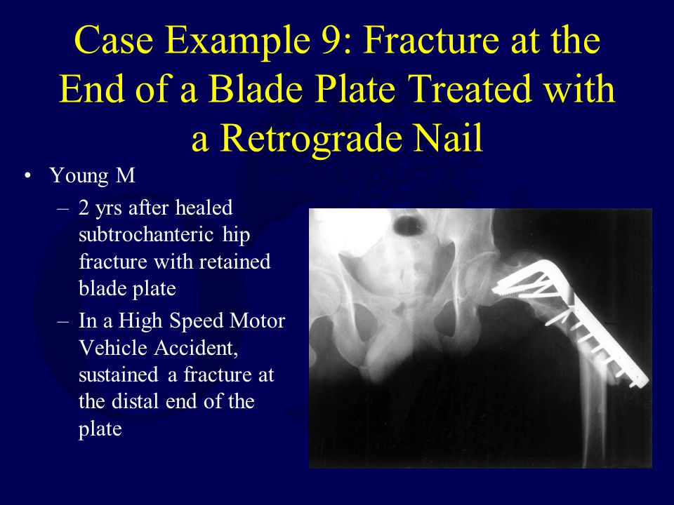 Case Example 9: Fracture at the End of a Blade Plate Treated with a Retrograde Nail Young M –2 yrs after healed subtrochanteric hip fracture with retained blade plate –In a High Speed Motor Vehicle Accident, sustained a fracture at the distal end of the plate
