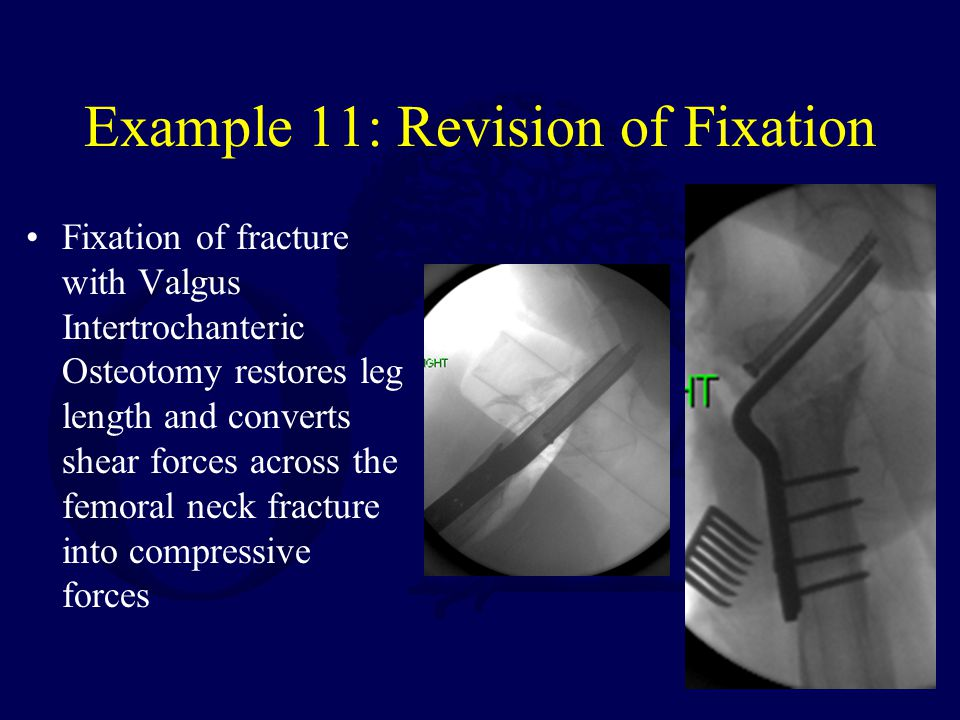 Example 11: Revision of Fixation Fixation of fracture with Valgus Intertrochanteric Osteotomy restores leg length and converts shear forces across the femoral neck fracture into compressive forces