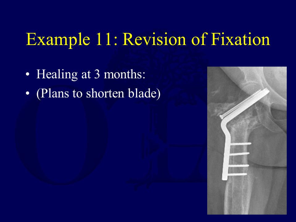 Example 11: Revision of Fixation Healing at 3 months: (Plans to shorten blade)