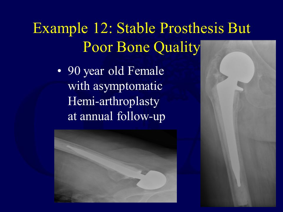 Example 12: Stable Prosthesis But Poor Bone Quality 90 year old Female with asymptomatic Hemi-arthroplasty at annual follow-up