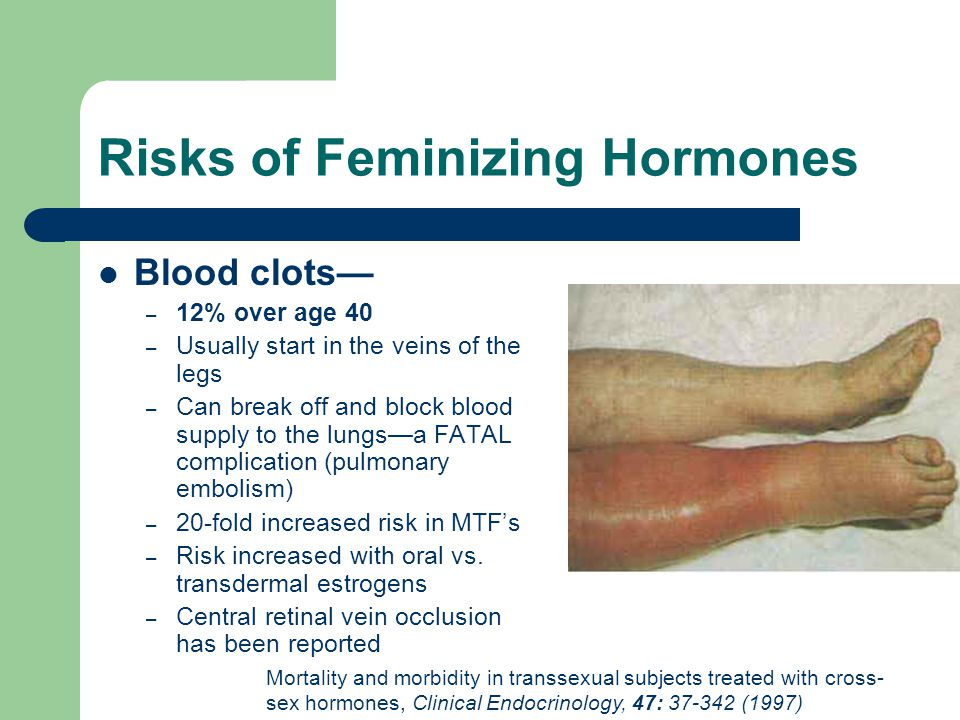 Risks of Feminizing Hormones Blood clots – 12% over age 40 – Usually start in the veins of the legs – Can break off and block blood supply to the lung
