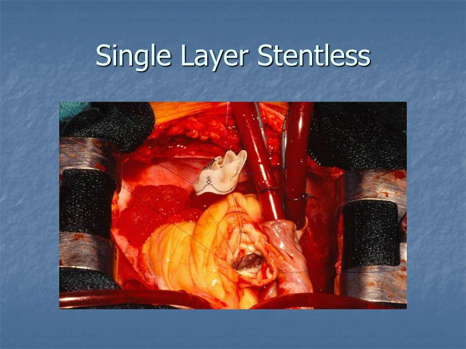 Single Layer Stentless