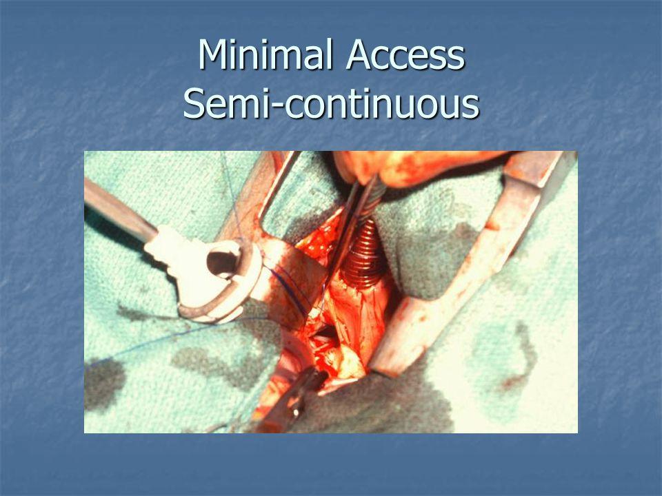 Minimal Access Semi-continuous