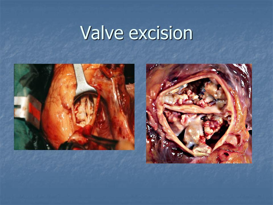 Valve excision