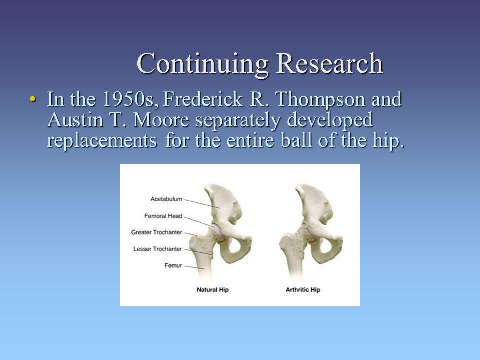 Continuing Research In the 1950s, Frederick R. Thompson and Austin T. Moore separately developed replacements for the entire ball of the hip.In the 19