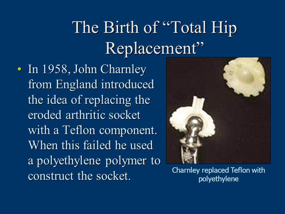 The Birth of Total Hip Replacement In 1958, John Charnley from England introduced the idea of replacing the eroded arthritic socket with a Teflon comp