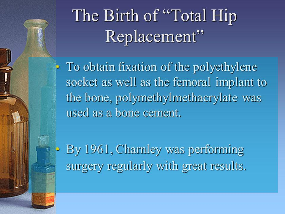 The Birth of Total Hip Replacement To obtain fixation of the polyethylene socket as well as the femoral implant to the bone, polymethylmethacrylate wa