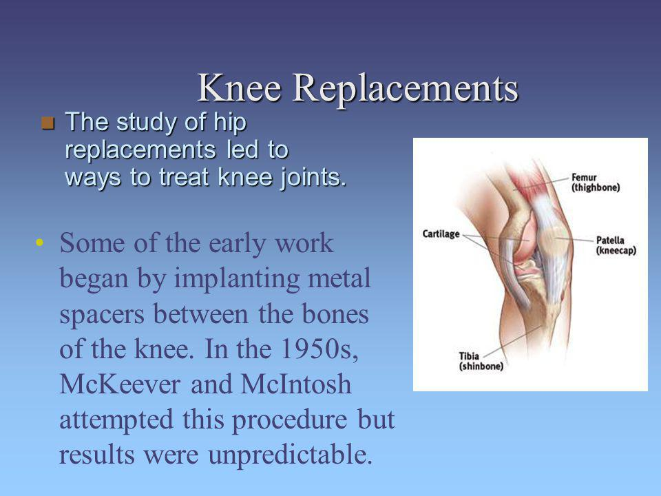 Knee Replacements Some of the early work began by implanting metal spacers between the bones of the knee. In the 1950s, McKeever and McIntosh attempte