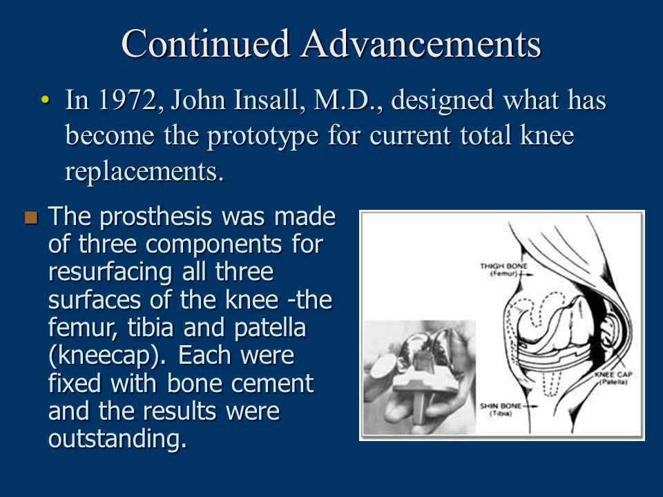 Continued Advancements In 1972, John Insall, M.D., designed what has become the prototype for current total knee replacements.In 1972, John Insall, M.