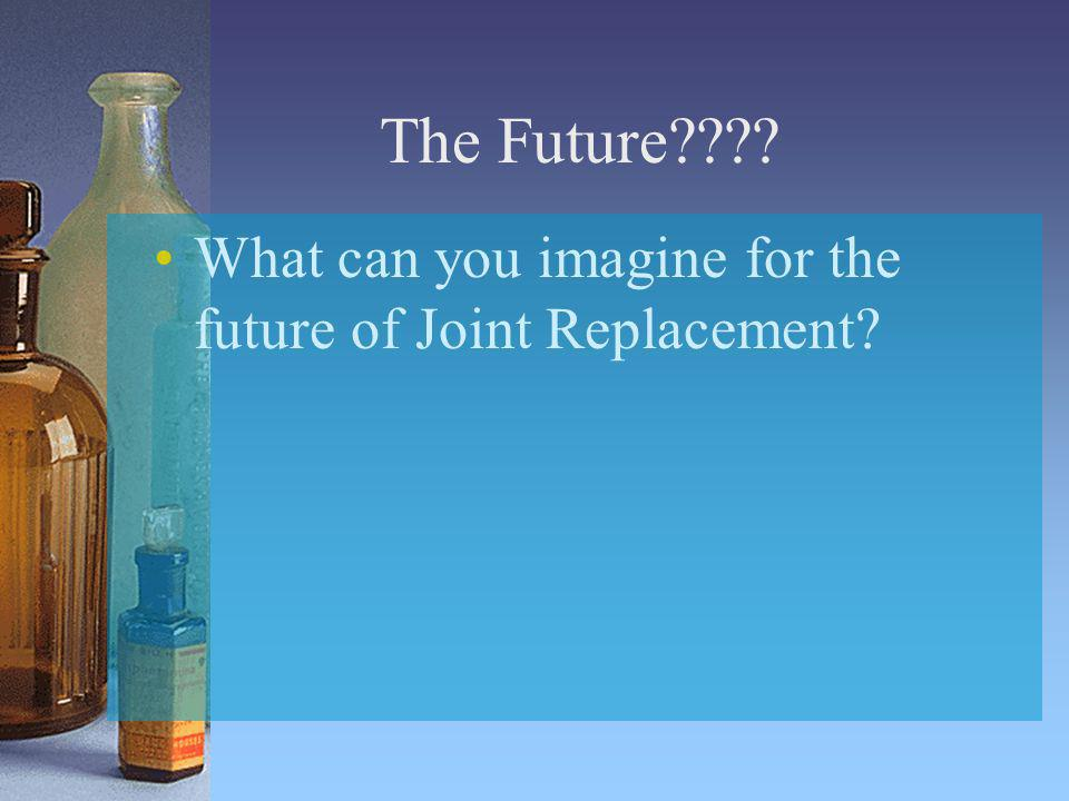 The Future???? What can you imagine for the future of Joint Replacement?